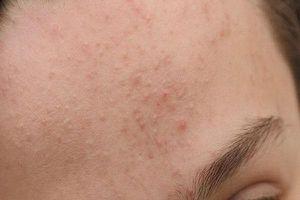 Nguyên tắc điều trị mụn ẩn dưới da bạn phải biết