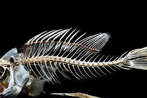 Người đàn ông Phú Thọ hôn mê, phải thở máy vì xương cá đâm thủng ruột