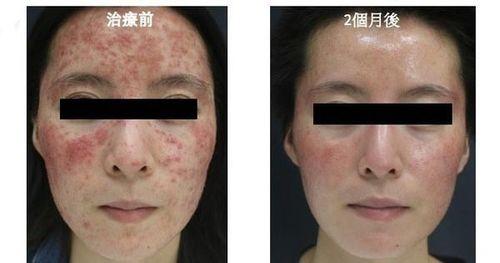 Cô gái bị viêm da suốt 6 năm, cứ 1cm² trên mặt có 528 con ký sinh trùng trên da