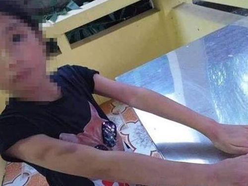 Bé gái 9 tuổi bị cô giáo dạy luyện đọc chữ cầm thước đánh vào má bầm tím