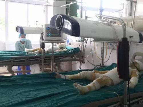 Ba trẻ mầm non bị bỏng do cô giáo đốt cồn dạy học: Hai nạn nhân được ghép da