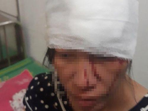 Mẹ quỳ xin, thai phụ câm điếc vẫn bị nam thanh niên đánh nhập viện?