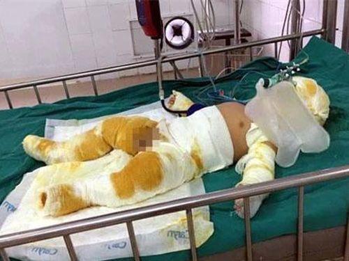 Yên Bái: Bất cẩn khi đun nấu, cha mẹ cùng con trai 7 tháng tuổi bị bỏng nặng