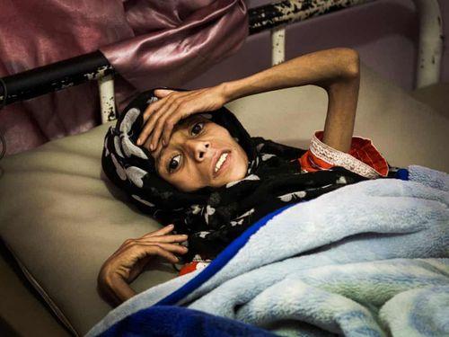 'Mưa sẽ rửa trôi máu', Yemen như vùng đất ma sau 4 năm nội chiến