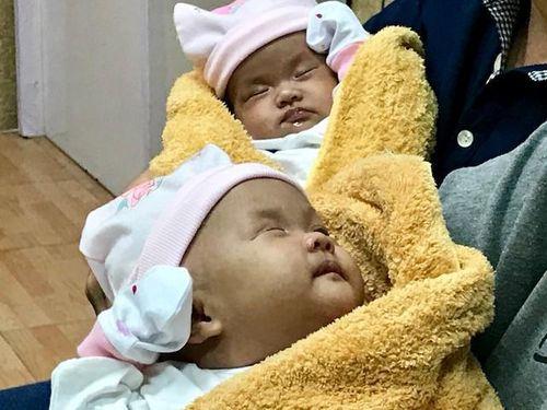 Cặp song sinh dính bụng-gan mạnh khỏe xuất viện trong vòng tay cha mẹ
