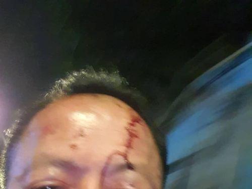 Việt Kiều Đức bị đánh trọng thương trong quán karaoke