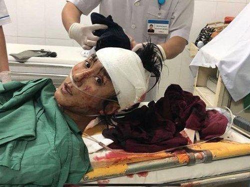 Khánh Hòa: Nam thanh niên bị chém đứt lìa bàn tay trái và ngã gục trong đêm