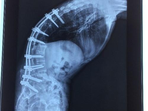 Phẫu thuật thành công bệnh nhân 'siêu gù' do biến dạng của viêm cột sống dính khớp