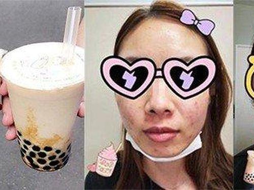 Nghiện trà sữa, hai cô gái nổi mụn chi chít như tổ đỉa trên mặt