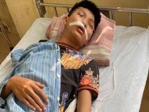 Hà Nội: Nhóm học sinh đánh hội đồng khiến bạn cùng trường phải nhập viện