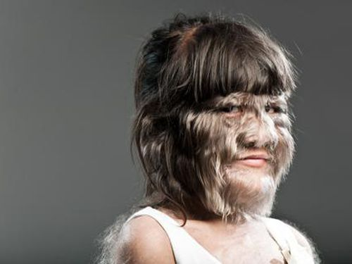 Top 10 dị nhân 'lông lá' nhất hành tinh