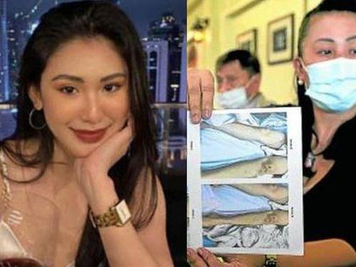 Vụ người đẹp Philippines tử vong: Kết quả khám nghiệm có sự khác biệt