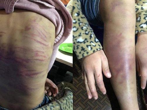 Cháu bé 12 tuổi ở Hà Nội bị bạo hành: 'Lỗ hổng' pháp lý trong việc bảo vệ trẻ em