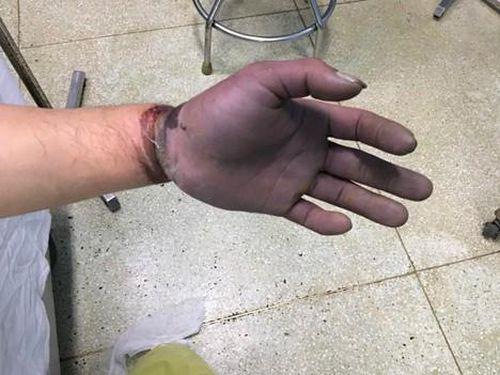Tai nạn lao động khiến nam thanh niên suýt mất chức nặng vận động tay