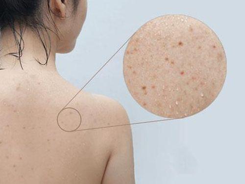 3 cách trị mụn ở lưng có thể bạn chưa biết