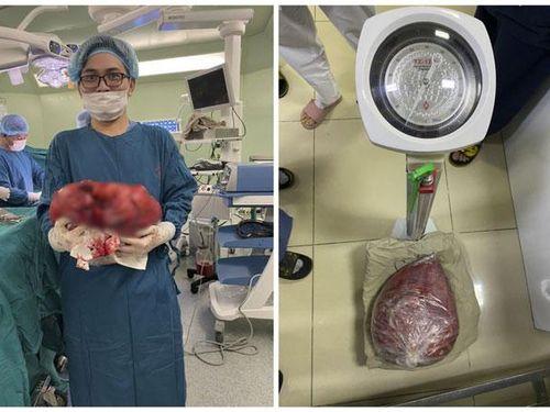 Cắt bỏ khối u nặng 10kg trong ổ bụng