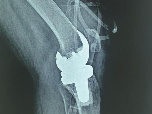 Lần đầu tiên Việt Nam phẫu thuật thành công thay khớp gối nhân tạo