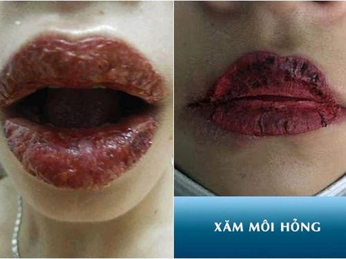 Hội chị em phun môi collagen, netizen nhìn mà chết khiếp