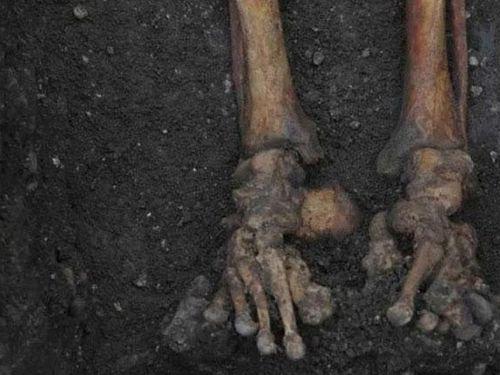 314 bộ xương vỡ vụn của người Anh thời Trung cổ ẩn chứa sự thật tàn khốc, đáng sợ