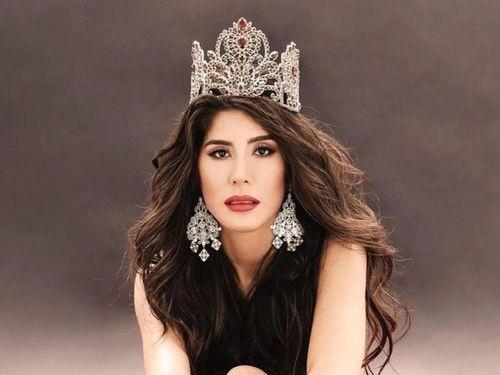 Hoa hậu Paraguay mắc Covid-19 trước ngày thi Miss Universe