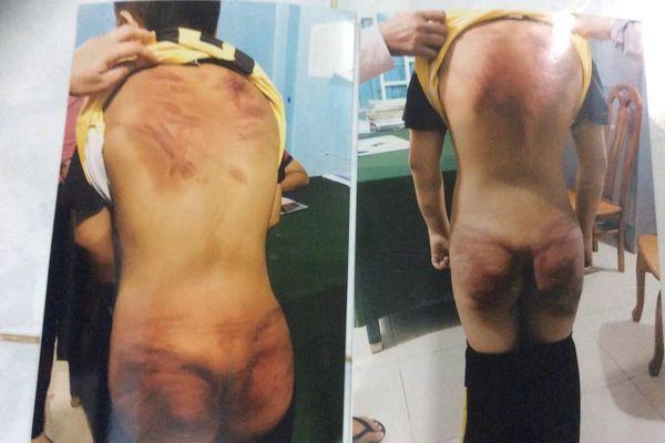 Vụ thầy tu đánh dã man bé 11 tuổi: Trưng cầu giám định thương tật