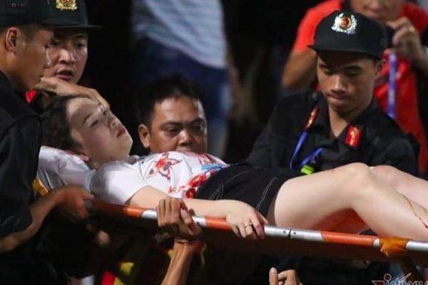 Cổ động viên nữ bê bết máu vì dính pháo sáng trong trận Nam Định thua CLB Hà Nội