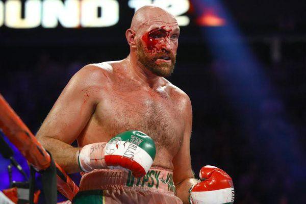 Quyền Anh: Fury 'giận dữ' trả giá cho chiến thắng - rách chân mày, máu chảy đầy mặt phải nhập viện