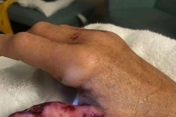 Người phụ nữ suýt mất tay do 'vi khuẩn ăn thịt người'