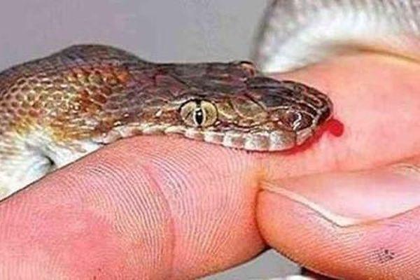 Dùng thuốc nam đắp sau khi bị rắn cắn, người đàn ông tử vong