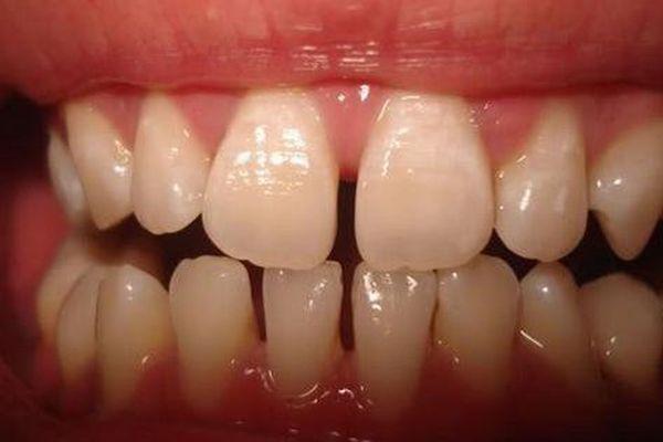 'Lấp đầy' răng thưa, cách nào rẻ nhất?