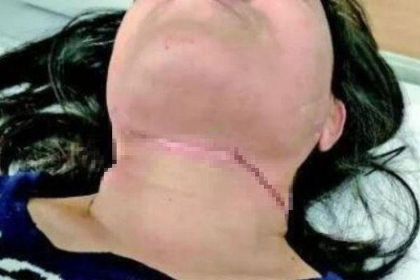 Người phụ nữ bị dây diều cứa cổ khi đang đi xe máy