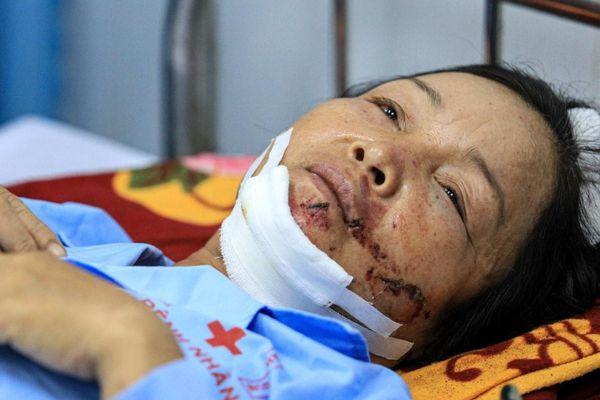 Phút sinh tử của người sống sót sau vụ sập công trình ở Đồng Nai