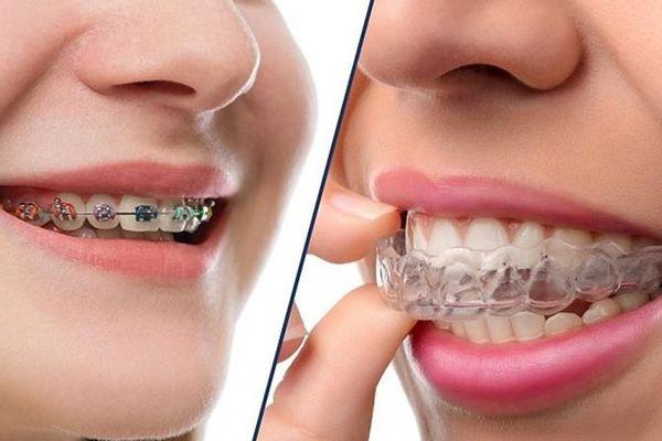 'Không thể để răng xấu suốt kiếp' - niềng răng không phiền phức như bạn tưởng!