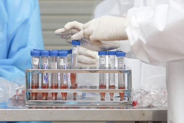 Thêm phương pháp xét nghiệm mới để phát hiện khẳng định SARS-CoV-2