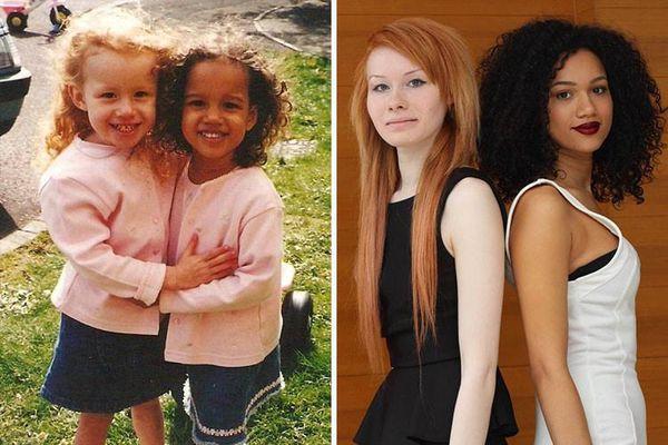 Cặp sinh đôi người Anh khác biệt hoàn toàn về ngoại hình