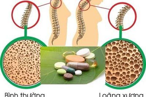 Cảnh báo nguy cơ làm yếu xương của thuốc corticosteroid trị hen suyễn