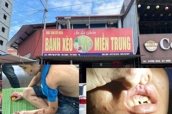 Tạm giữ hình sự nữ chủ quán tra tấn nhân viên quán bánh xèo ở Bắc Ninh