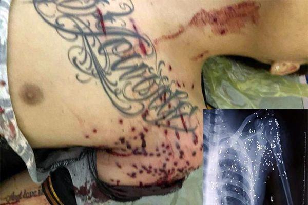 Nam thanh niên bị kẻ lạ mặt dùng súng hoa cải bắn đang nguy kịch