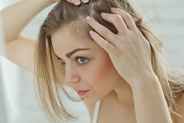 Da đầu thường tróc vảy, mẩn đỏ - nguyên nhân và cách điều trị