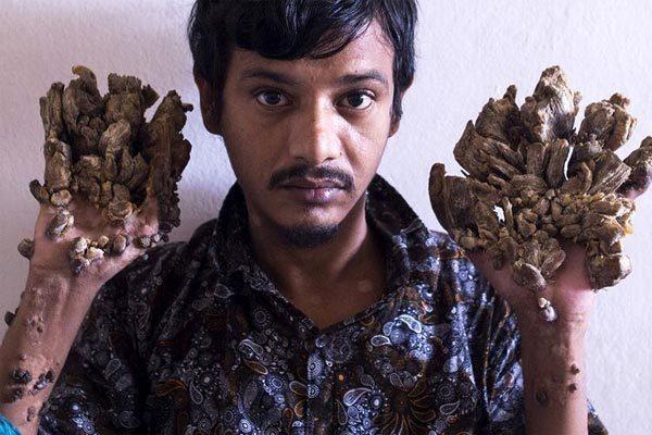 'Người cây' Bangladesh cầu xin được cắt cụt tay