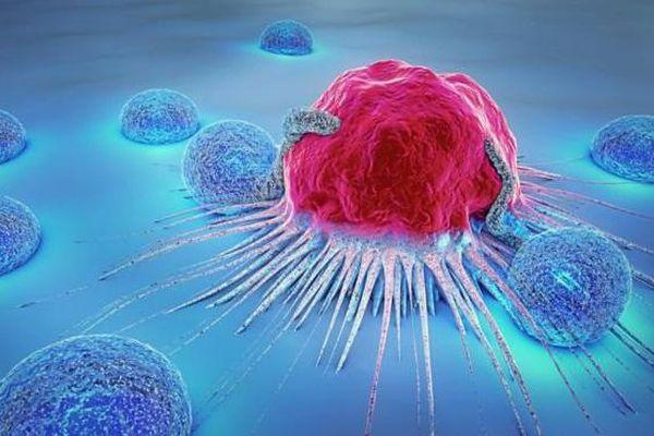 Phòng bệnh hơn chữa bệnh, đây là 7 lời khuyên của chuyên gia ung bướu giúp'đẩy lùi' nguy cơ ung thư: Thực hiện mỗi ngày để bảo vệ sức khỏe bản thân