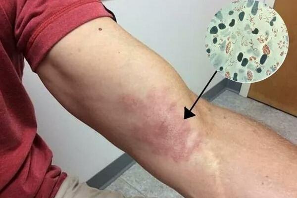 Từ ca mắc phong thể nhiều vi khuẩn giống Lupus ban đỏ Không mất cảnh giác với bệnh phong