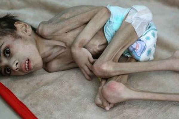 Cậu bé Yemen 7 tuổi nặng 7 kg