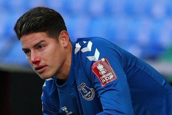 James Rodriguez đổ máu trong trận thắng của Everton