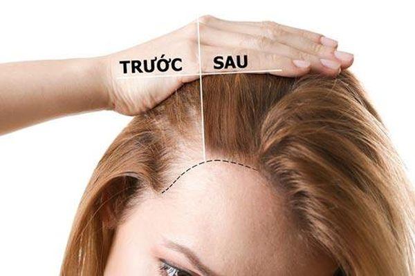 Kích thích tóc mọc nhanh bằng phương pháp tự nhiên