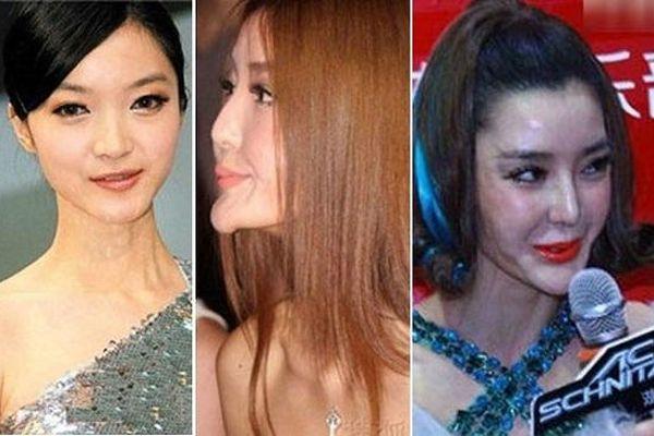 Những sao nữ đang xinh đẹp bỗng thành 'thảm họa dao kéo' của showbiz châu Á