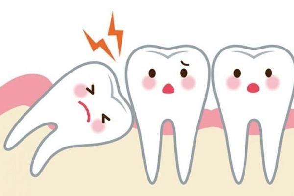 Tại sao hay 'mọc ngu' mà chúng vẫn được gọi là 'răng khôn'?