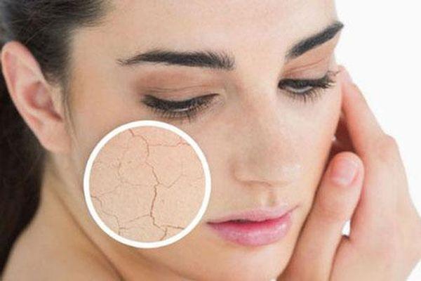 Khắc phục tình trạng da khô vô cùng hiệu quả