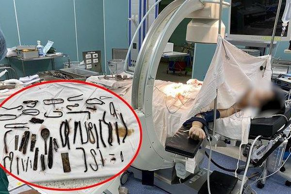 Bác sĩ gắp cả 'vựa ve chai' trong bụng bệnh nhân ở Bình Dương