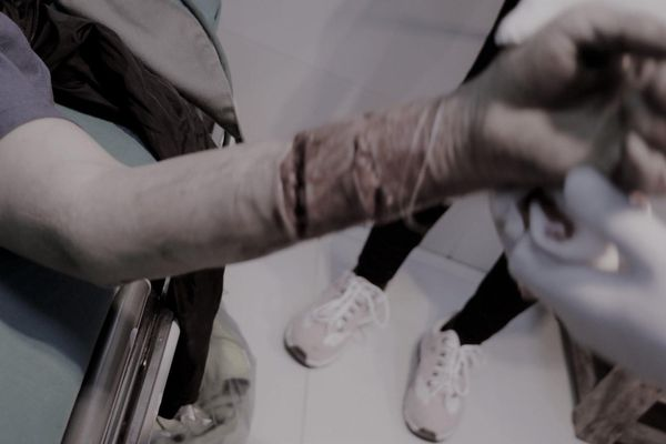 Nhập viện cấp cứu trong tình trạng nghiêm trọng do bị loài chó hung dữ nhất thế giới cắn